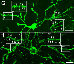 New medium spiny neurons integrating into the brain's existing striatopallidal circuitry.
