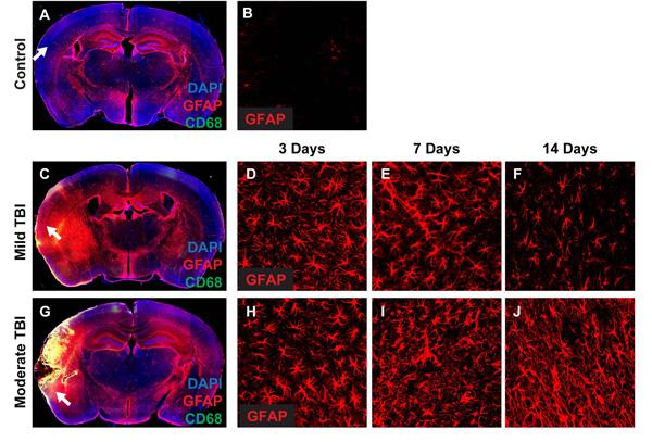glial responses to traumatic brain injury  stroke  the