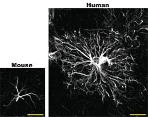 Mouse vs. human astrocytes.